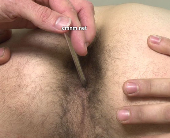 male rectal temps nude